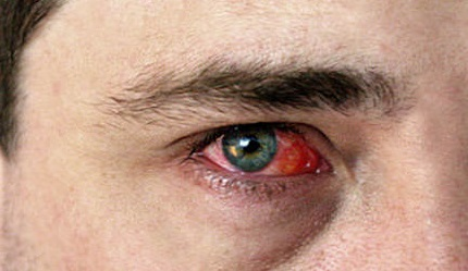 Аллергический конъюнктивит – симптомы и лечение у взрослых и детей