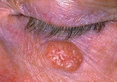 Базалиома кожи: симптомы, фото, лечение в начальной стадии