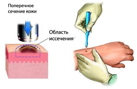 Apie pacientų, sergančių nagų mikoze, medicininės priežiūros standarto patvirtinimą