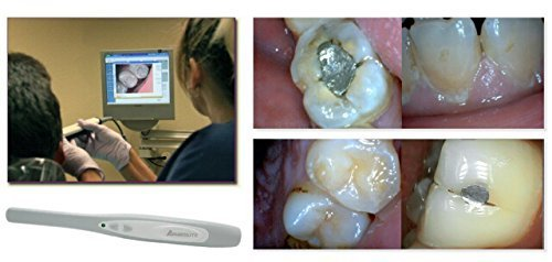 Aphrodite-Intraoral-Camera-High-Quality-user-friendly-Digital-Video-Imaging-System-for-Intra-Oral-Photography-Aphrodite-MD740-Works-with-Windows-XPVista78-Slim-Design-Crystal-Clear-Images-Easy-USB-Con-0-0