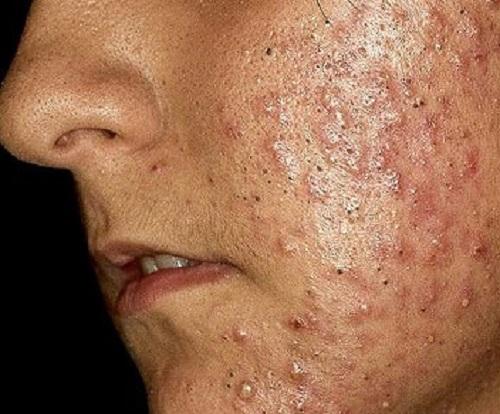 acne-problema