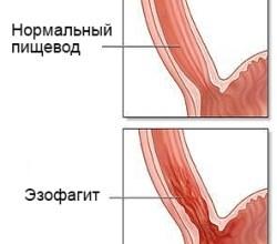 Photo of Причини, класифікація, симптоми, діагностика та лікування дистального езофагіту