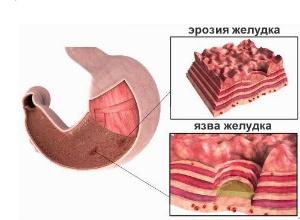 Photo of Як вилікувати ерозивний гастродуоденіт і не нашкодити собі