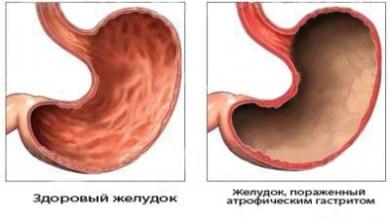 Photo of Провісник атрофічного гастриту: субатрофіческіх форма — як самостійне захворювання