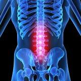 Photo of Причини остеохондрозу міжхребцевих дисків