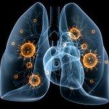 Photo of Перші ознаки розвитку пневмонії