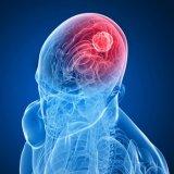 Photo of Сучасні методи лікування пухлини головного мозку