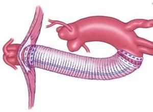 Photo of Варіанти протезування артерій та їх особливості
