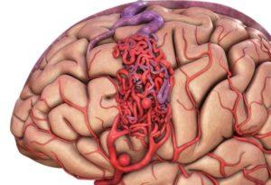 Photo of Ураження головного мозку через порушення кровообігу — цереброваскулярна недостатність: чим загрожує патологія?