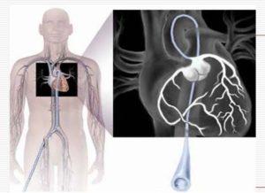 Photo of Дослідження вентрикулографія серця і голови: показання, можливі ускладнення