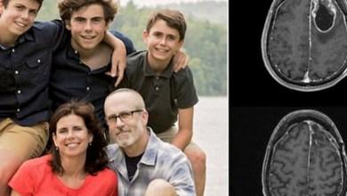 Photo of Жертва рідкісного раку мозку спростувала прогнози лікарів