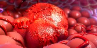 Photo of Психологічні причини раку