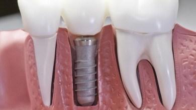 Photo of Імплантацію зубів під ключ: що це?