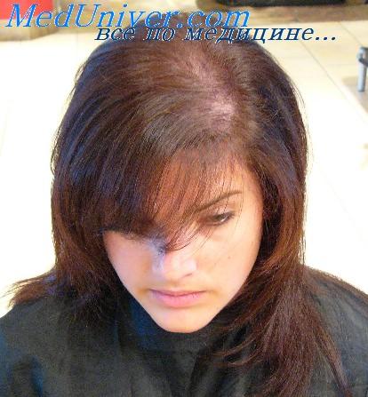 Выпадение волос у женщин Как избежать облысения