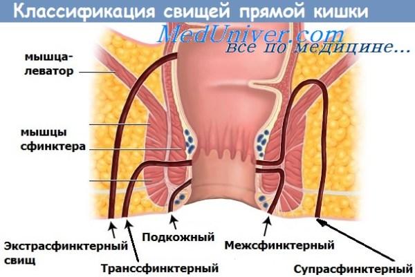 Экстрасфинктерный свищ прямой кишки: причины, диагностика ...