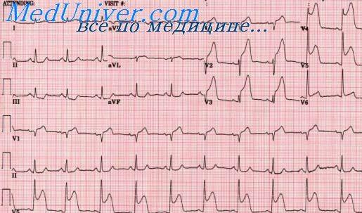 Признаки предынфарктного состояния на ЭКГ. Инфаркт миокарда