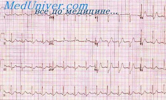 Высокий переднебоковой инфаркт Инфаркты задней стенки