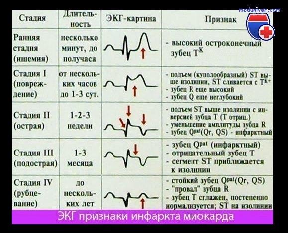 Диагностика инфаркта миокарда Резорбционнонекротический
