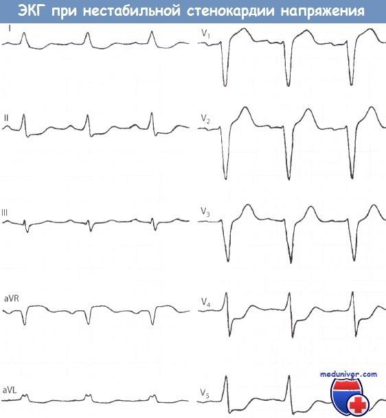 Признаки нестабильной стенокардии напряжения на ЭКГ
