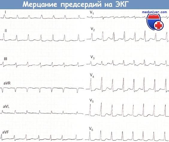 ЭКГ при мерцательной аритмии. Мерцание предсердий