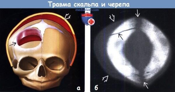 Травмы скальпа и черепа на МРТ, КТ