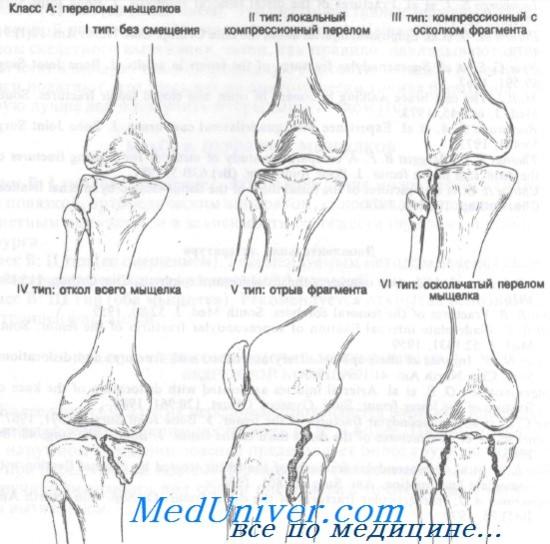 térdízületi kezelés medialis ligamentumának törése éjszakai fájdalom a csípőpótlás után