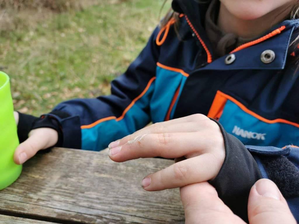 Verletztes Fingerchen des kleinen Wikingers