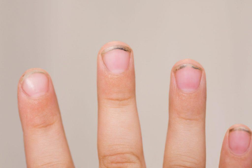 vieze nagels