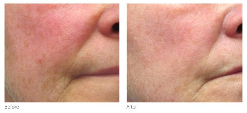 Redness Relief Before and After
