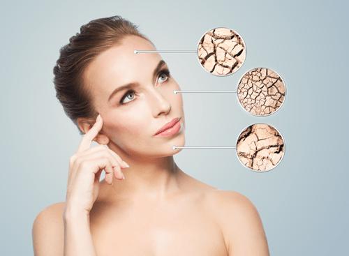 Does Your Skin Feel like a Dermal Desert?