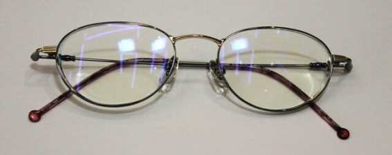 バセドウ病眼症眼窩減圧術後の眼鏡出来上がり