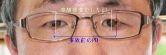 使用中の眼鏡