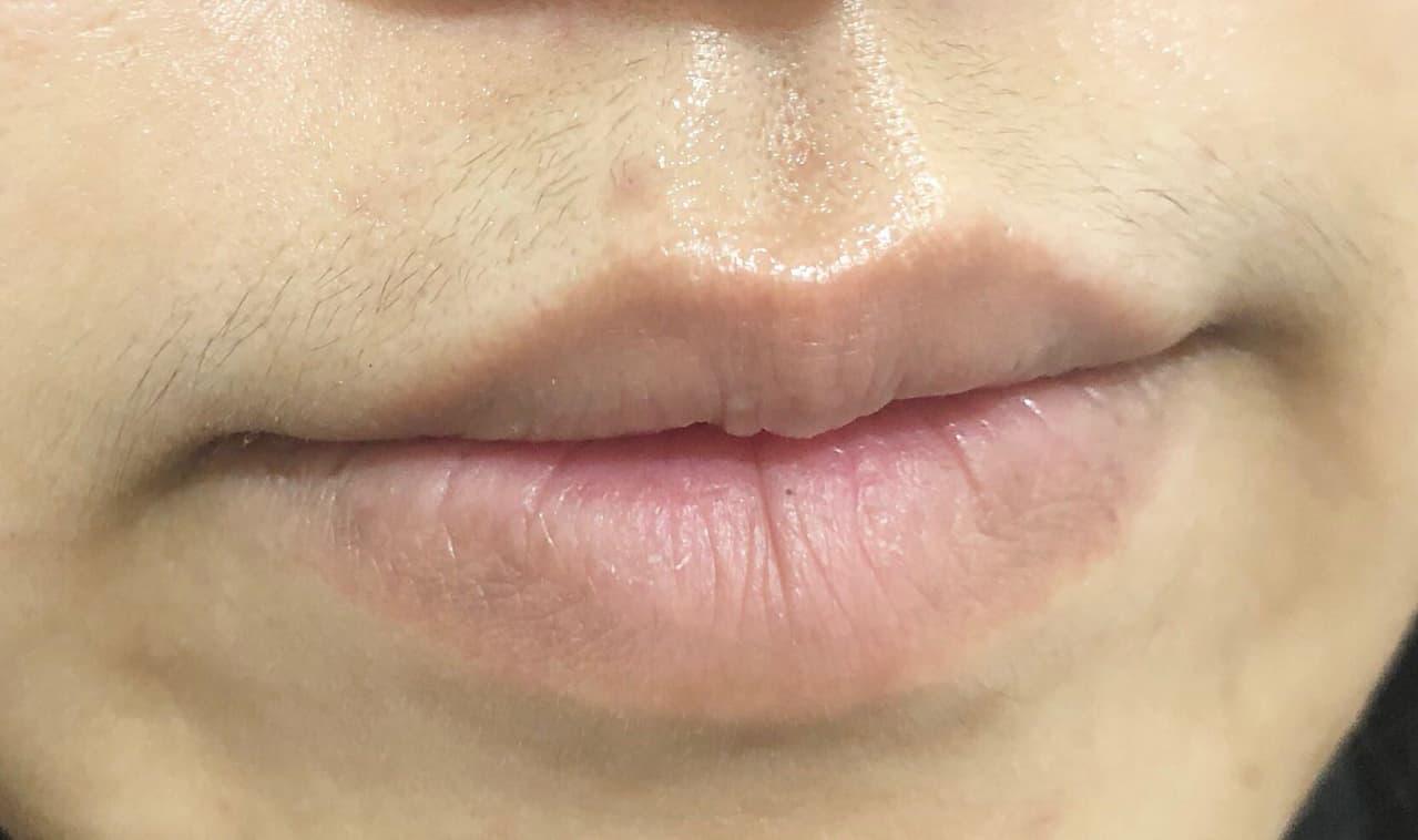 近期改善痘疤有感的DR.WU潤透光密集淡斑 - 美妝板 | Dcard
