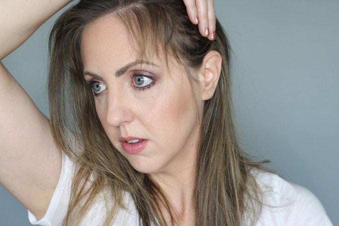 Postpartum Hair Loss Regrowth