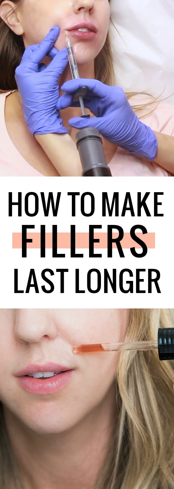 How to make fillers last longer - come see how I maintain my fillers!