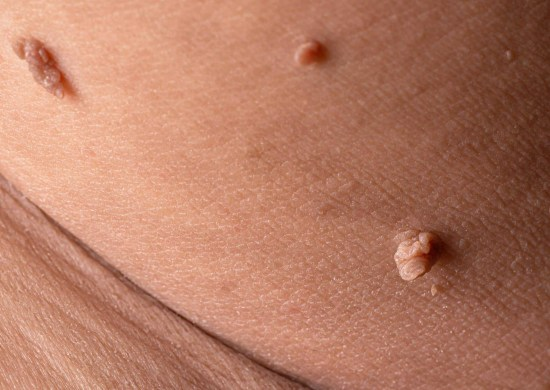 Skin tags and Melasma