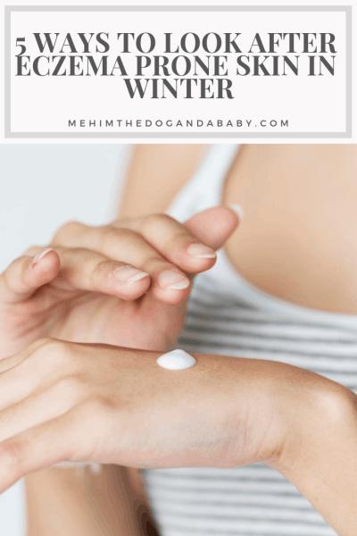 5 Ways To Look After Eczema Prone Skin In Winter