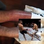 pierna de Gilbert Meléndez