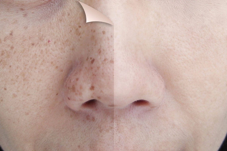 Reduce las manchas de tu piel con este jabón artesanal de perejil