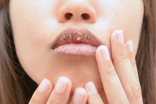 labios agrietados