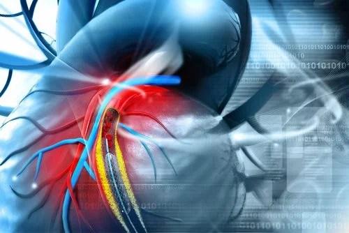 Las placas de ateromas aumentan los riesgos de ataques al corazón.