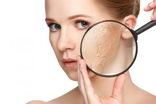 aliviar la piel seca