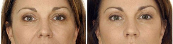 Botox Anti-Wrinkle Injections Melbourne Clinic Results