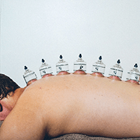 Cupping Therapy For Frozen Shoulder