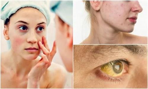 7 sinais no rosto de deficiências nutricionais