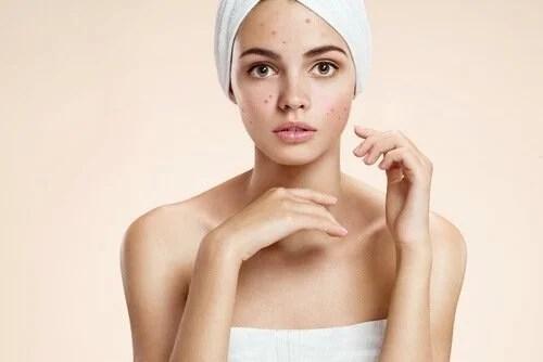 Como eliminar a acne