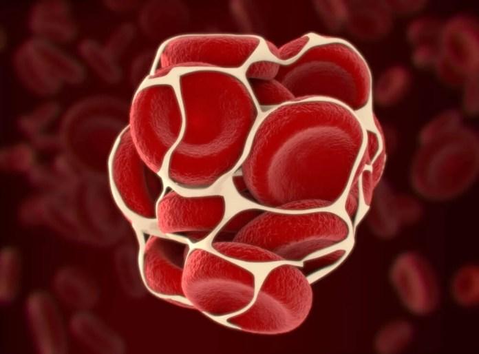 Coágulos de sangue