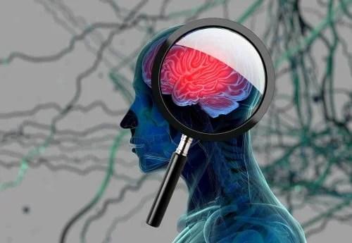 Como-detectar-princ%C3%ADpio-doen%C3%A7a-Alzheimer03-500x345 Como detectar o princípio da doença de Alzheimer