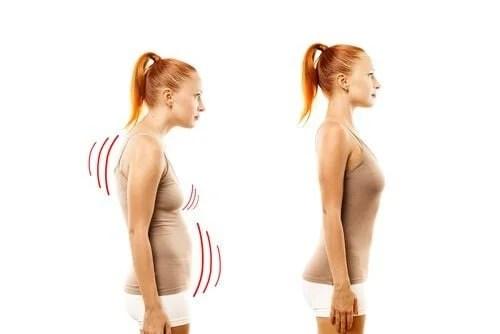 corrigir-postura-corporal-500x334 Aprenda a melhorar sua postura seguindo esses simples passos