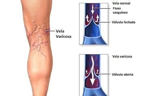 Venas-varices-500x325